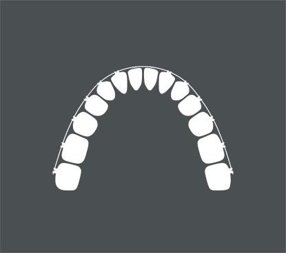 Behandlungsmethode-Feste-Zahnspange